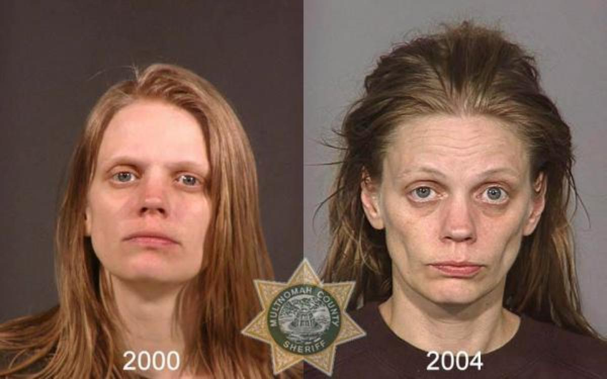 meth before and after