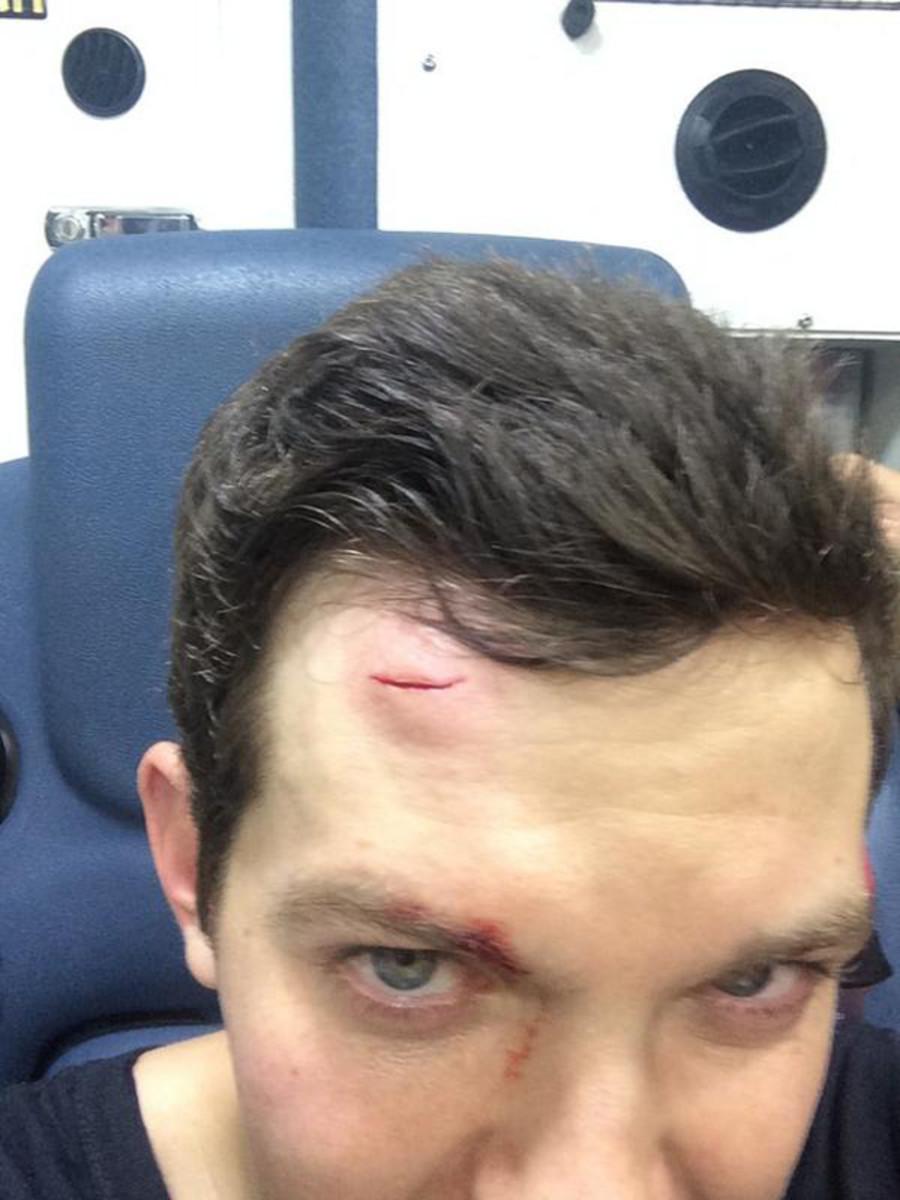 Unruly & Un-Tite 'Fan' Sends Dillon Francis To The Hospital